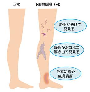 左足のむくみに要注意!病気が原因でむくんでいる …